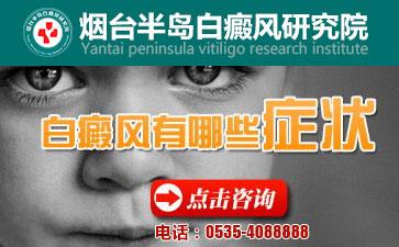 烟台儿童白癜风的初期症状有哪些